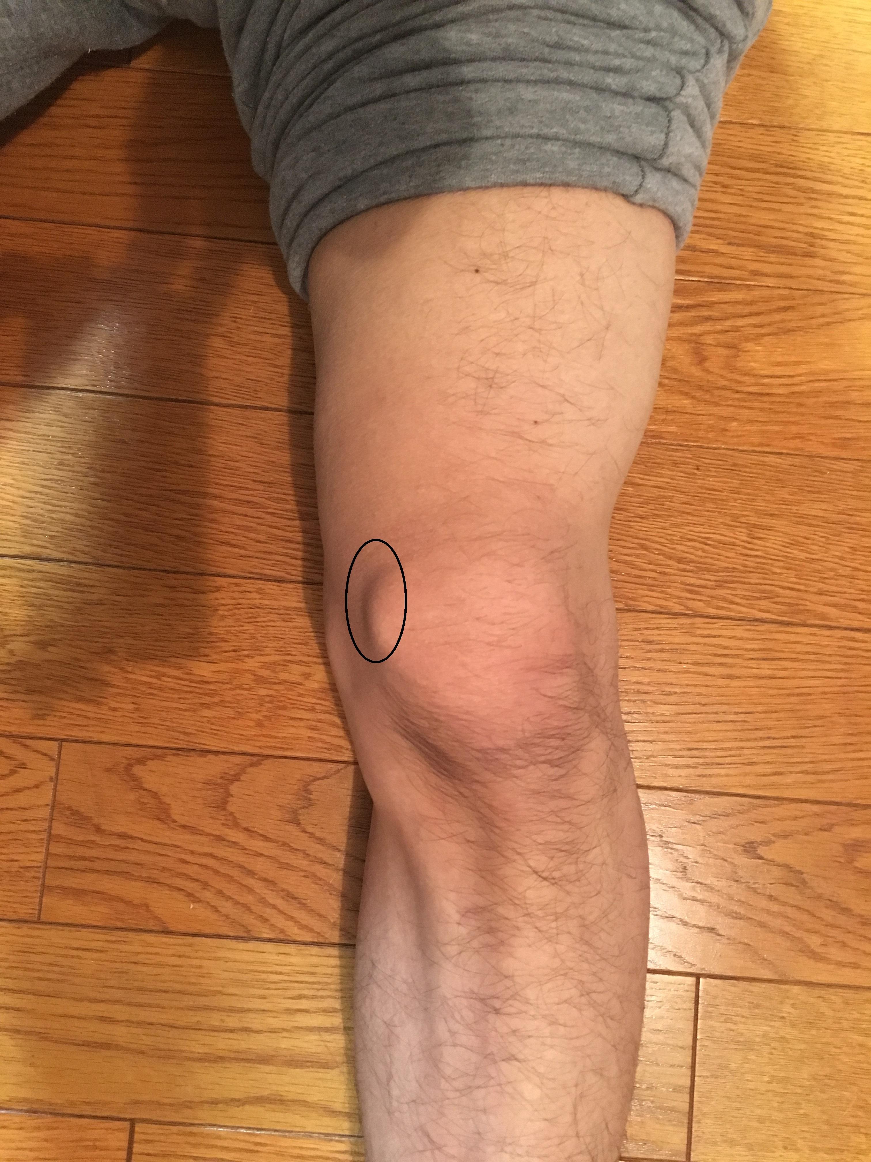 痛い が の 膝 内側